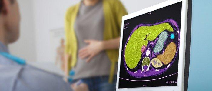 Urología para la mujer
