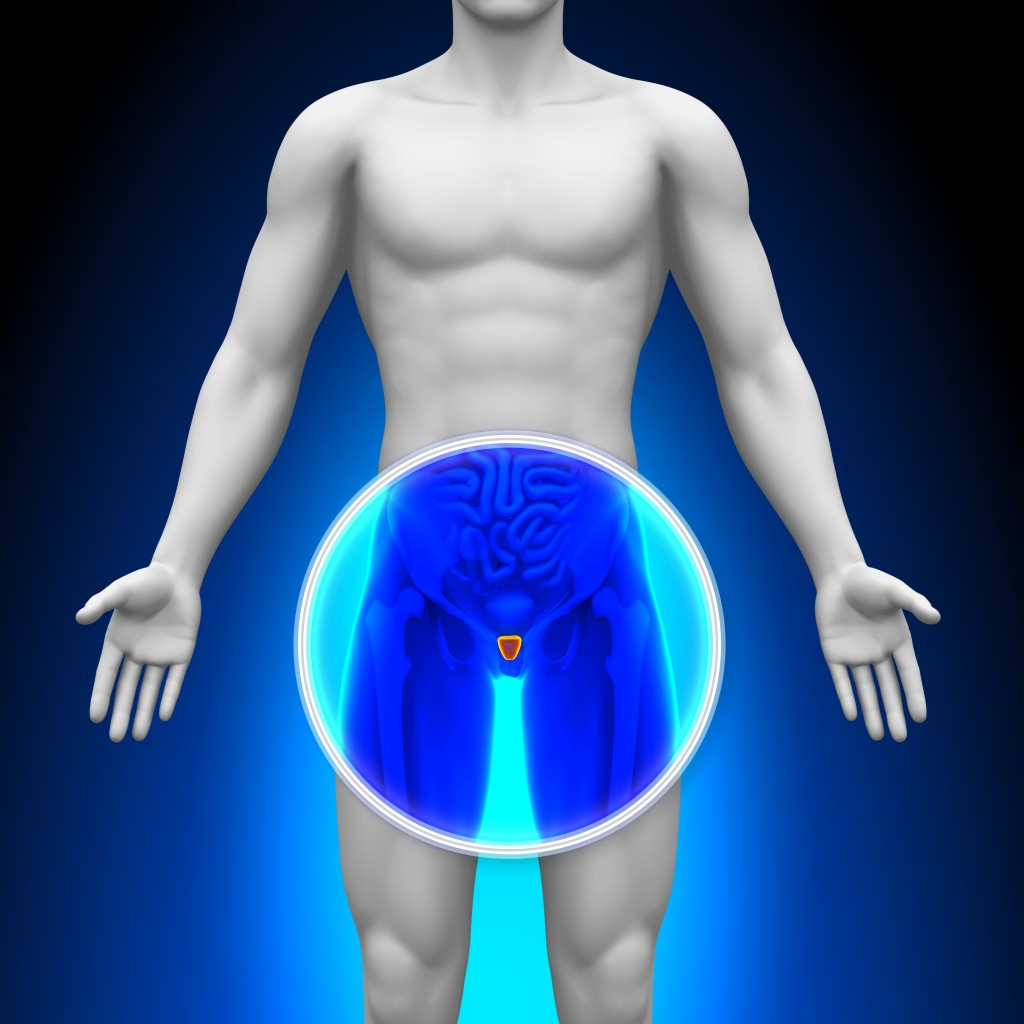 Medical X-Ray Scan - Prostate
